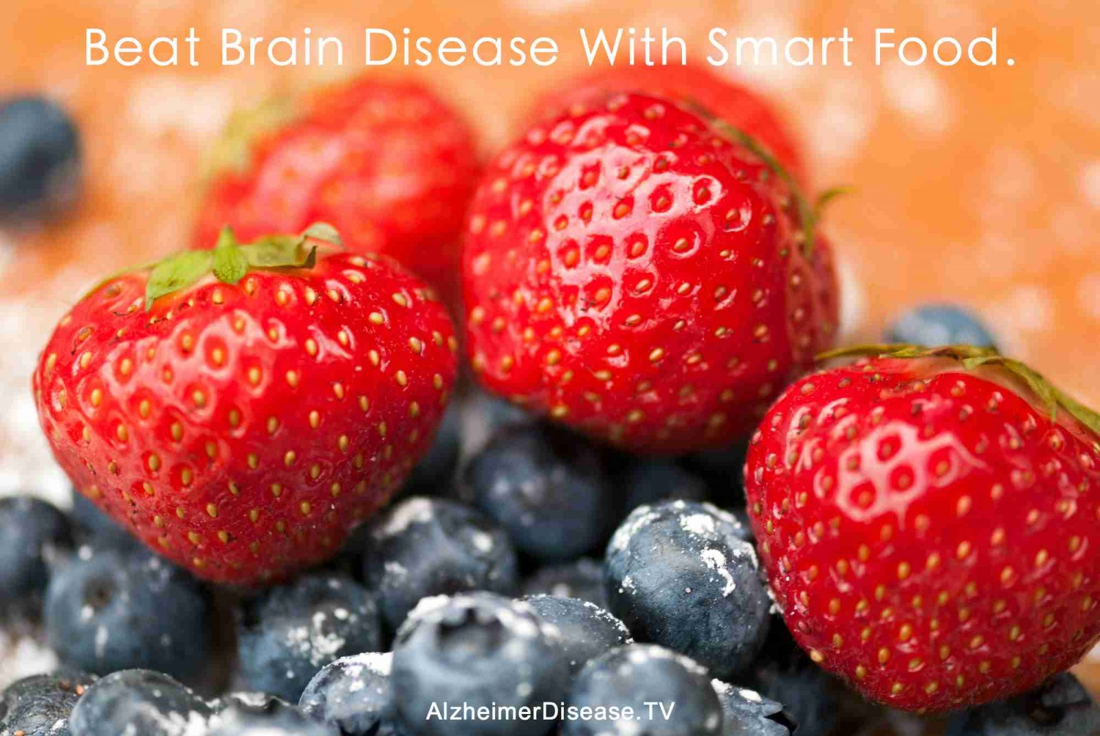Beat Alzheimer's Disease With Smart Nutrition