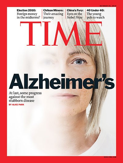 Alzheimer's disease contagion